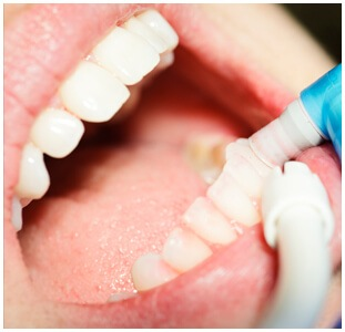 Periodontal (Gum) Care