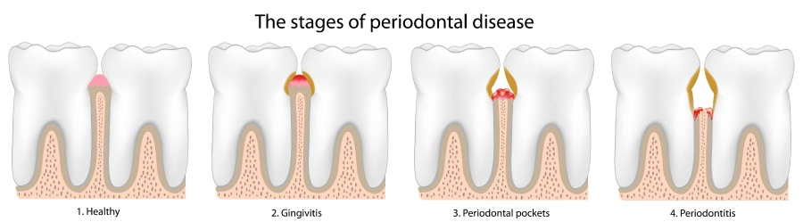 Artistic rendering of the 4 stages of periodontal disease