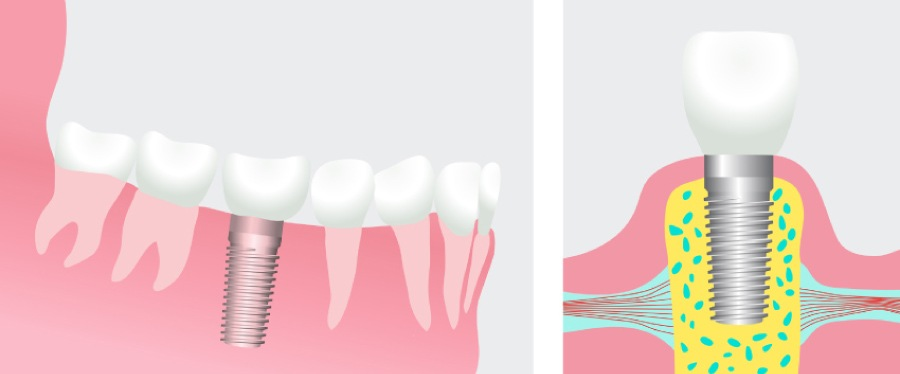 Graphic of a dental implant with a restoration